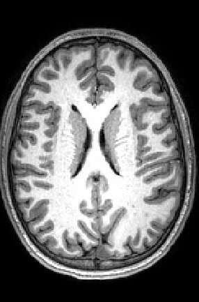 Two windows into the brain