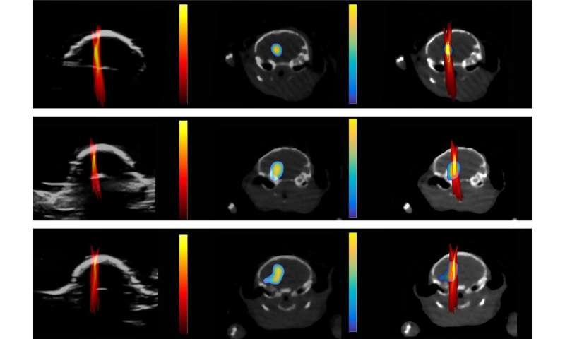 Ultrasound imaging can monitor the exact drug dose and delivery site in the brain