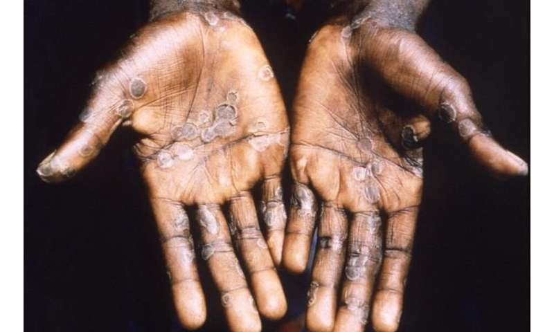 We don't have a cure for monkeypox virus, but the body can heal itself