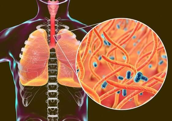 Whooping cough evolving to beat antibiotics and possibly vaccine