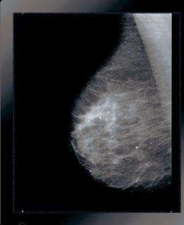 Breast cancer detection improved with image processing