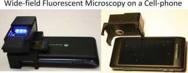 Add-on device converts cell phones into wide-field fluorescent microscopes