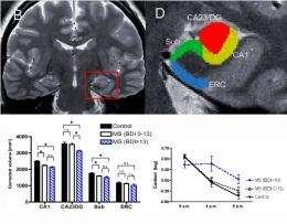Brain atrophy responsible for depression in people battling multiple sclerosis