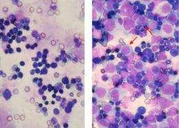 Cells of Aggressive Leukemia Hijack Normal Protein to Grow, According to Penn Study