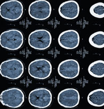 Cognitive problems may appear in children with epilepsy