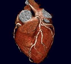 Combo high-tech CT scans just as good as older imaging to detect coronary artery disease