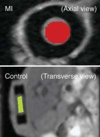 Detecting whether a heart attack has occurred
