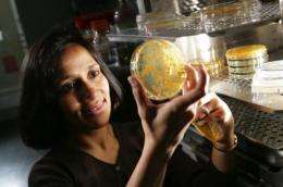Discovery: Yeast make plant hormone that speeds infection