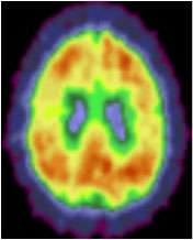 Exercise may reduce Alzheimer?s disease brain changes