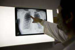 Older people and those with HIV are more vulnerable to tuberculosis