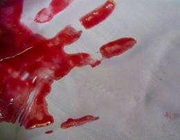 Real crime scene investigation of blood splatter patterns imperfect