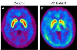 Research brings cure for Parkinson's disease a step closer