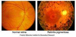 Researchers look to the future for defeating blindness