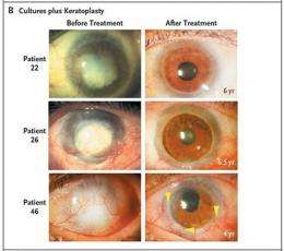 Stem cells reverse blindness caused by burns (AP)