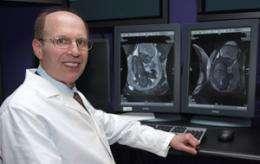 Unusual prenatal MRI detects rare, oft-missed genetic disease