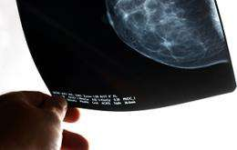 Women With Variants in 'CLOCK' Gene Have Higher Risk of Breast Cancer