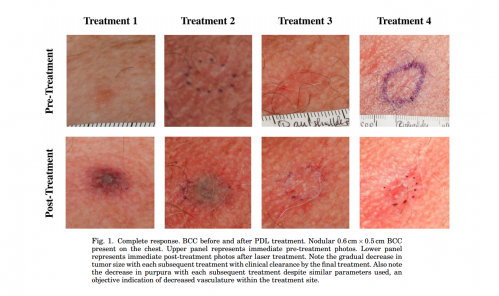 new non-invasive treatment of basal cell carcinoma, Human Body