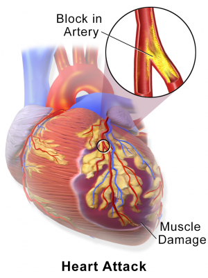 New Marker Could Help To Identify Heart Attack Patients Most At Risk
