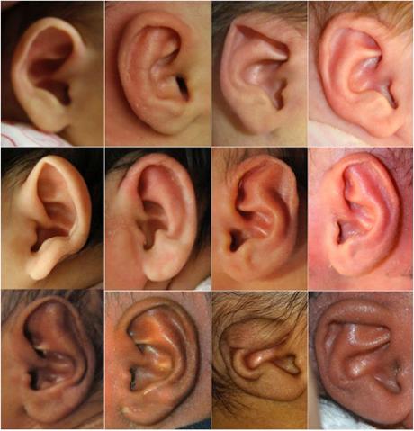 doctors nonsurgically correct infant ear deformities