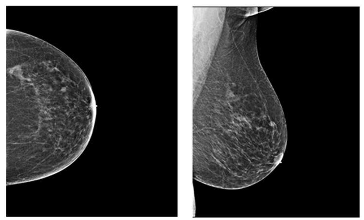 Mathematical analysis of breasts — photo 3