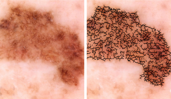 researchers develop automated melanoma detector for skin cancer