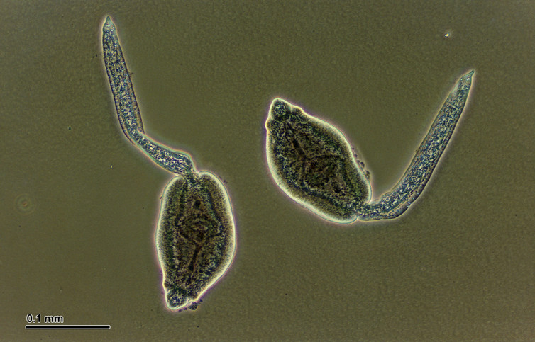Trematodes: little blighters. Credit: Josef Reischig/Wikimedia Commons, CC BY-SA