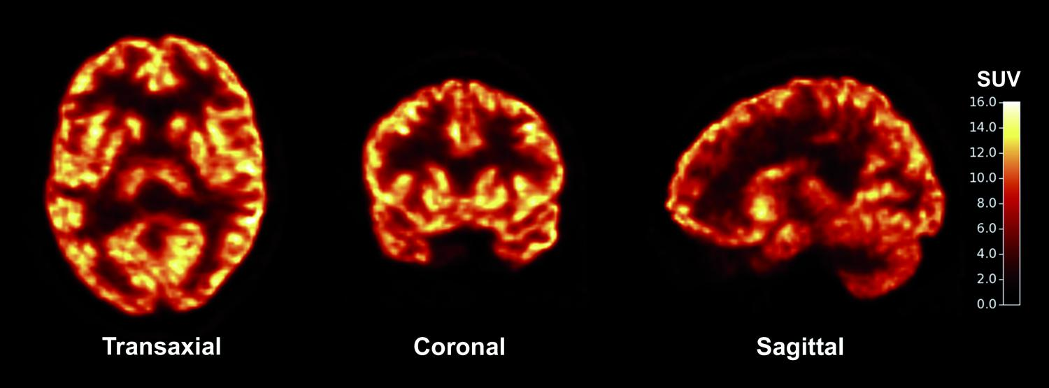 How To Apply Brain Science Of >> Scientists Apply New Imaging Tool To Common Brain Disorders