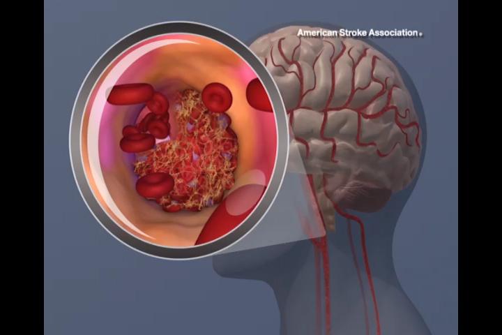 Stroke Risk Factors For Pregnant Women With Preeclampsia Uncovered