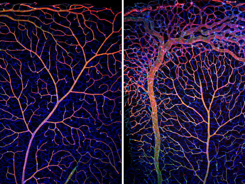 Absence Of Transcription Factor Unleashes Blood Vessel Growth