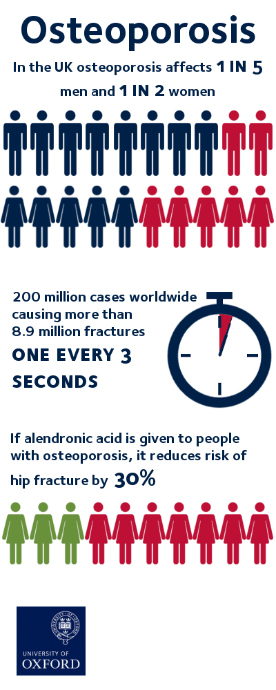 a look at osteoporosis a health ailment that causes bones to become porous and break easily Osteoporosis is a disease of the bones it happens when you lose too much bone, make too little bone or both as a result, bones become weak and can break from a minor fall or, in serious cases, even from simple.