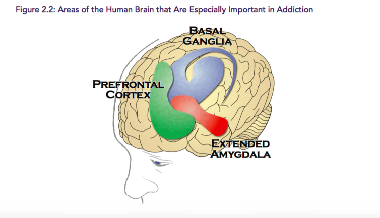 How to know when holiday drinking is hurting your brain regions of the brain are affected differently by alcohol credit surgeon generals report on addiction ccuart Choice Image
