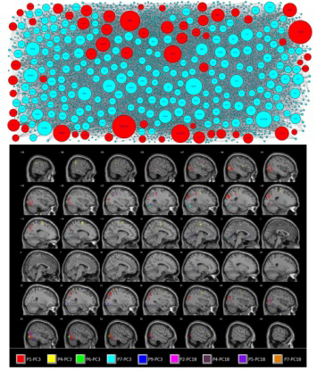 Multi-voxel pattern analysis of fMRI data predicts ...
