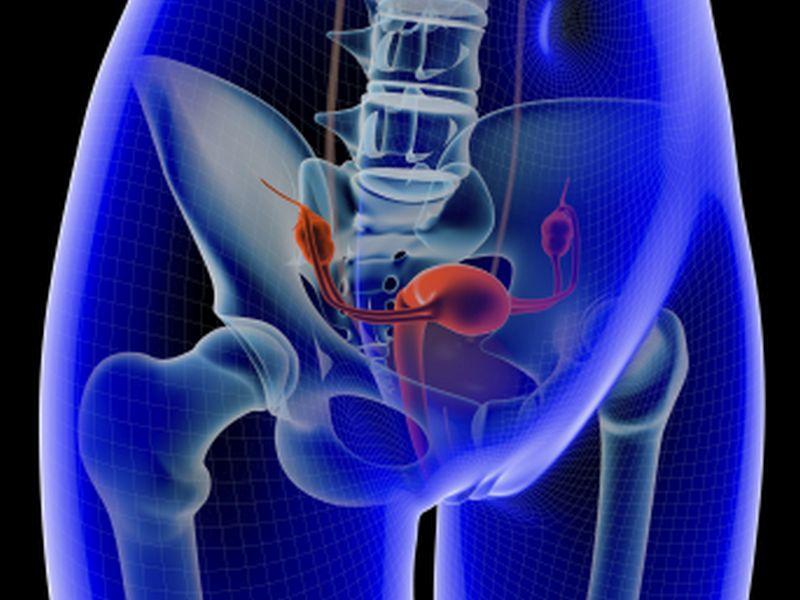 best dating a cancer survivor stories stage 4 uterine fibroids