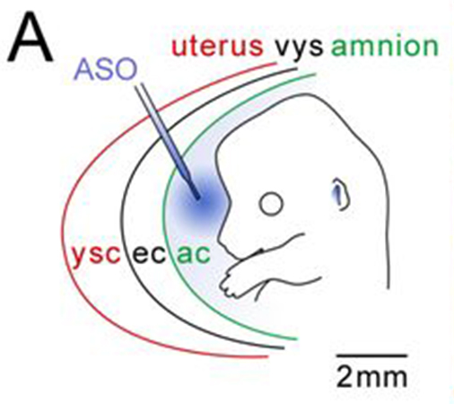 Study Shows Potential Disease Treatment In Newborns Via Drug