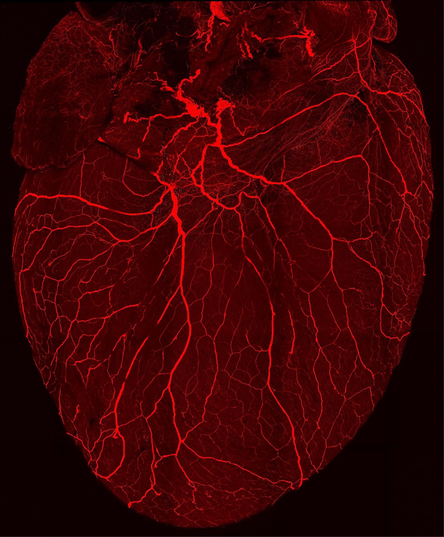 UCLAled consortium will map the hearts nervous system