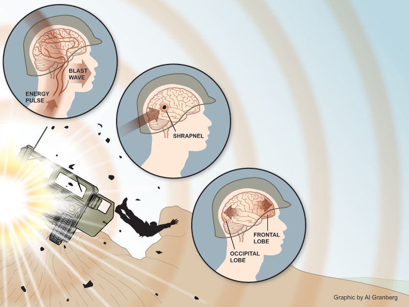 diagnostic approach for veterans suffering hearing impairment and related brain injury from mild