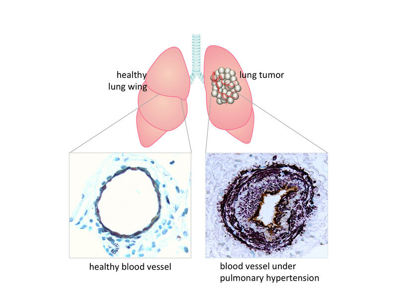 Lung cancer tumor