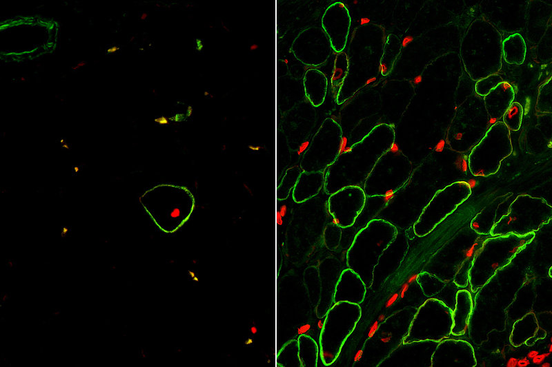 Researchers Create Skeletal Muscle From Stem Cells