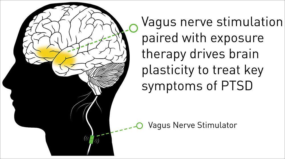 vagus nerve stimulation therapy shows progress in battling ptsd symptoms