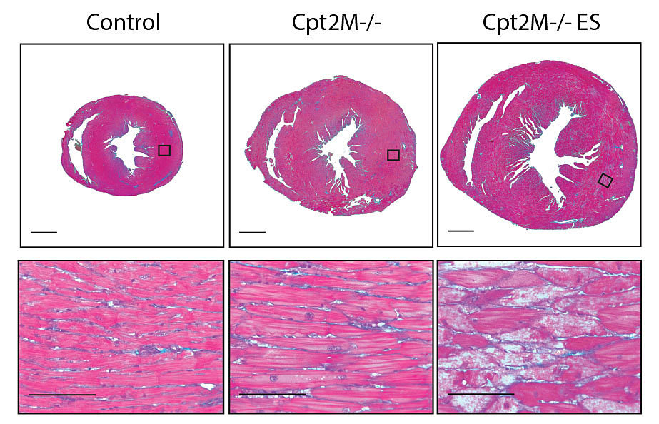 Study Finds That Fat Fuel Is Needed To Reverse Cardiac