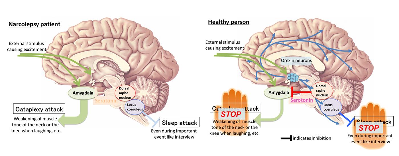 Identification of the neuronal suppressor of cataplexy, sudden ...