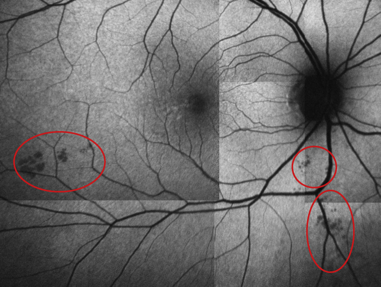 Peripheral Retinal Imaging Biomarkers for Alzheimer's ...