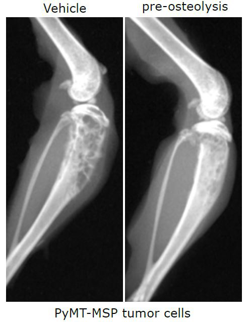metastases in breast cancer Bone