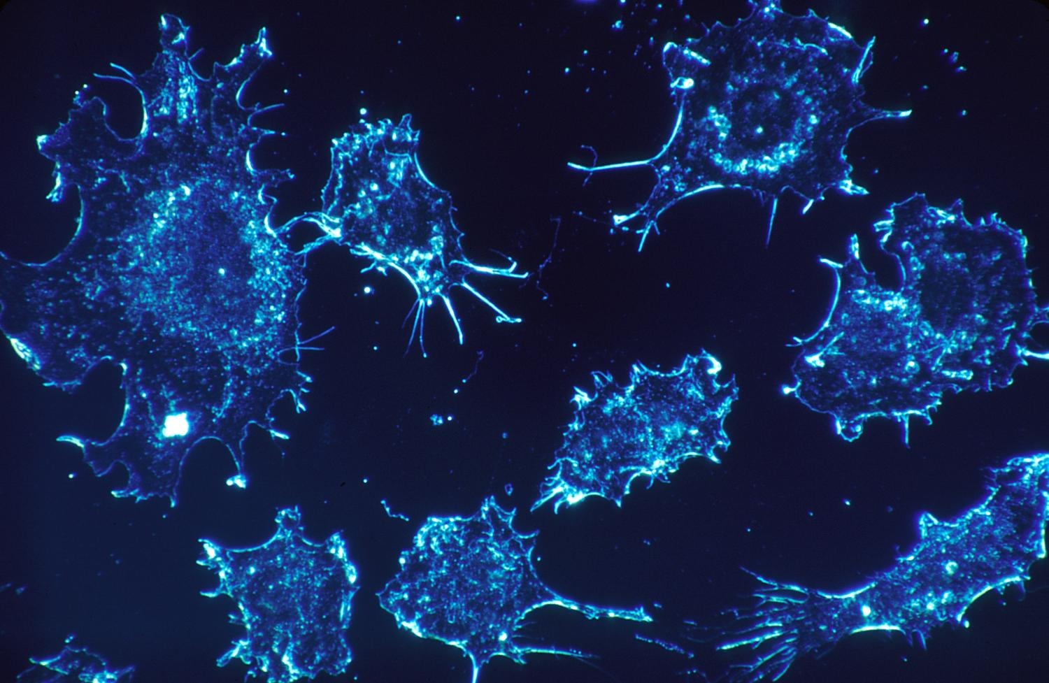 Researchers develop treatment that turns tumors into cancer vaccine factories