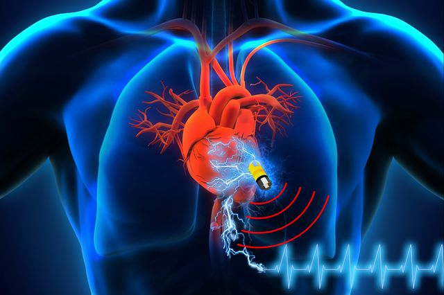 Battery Free Implantable Medical Device Draws Energy Directly From