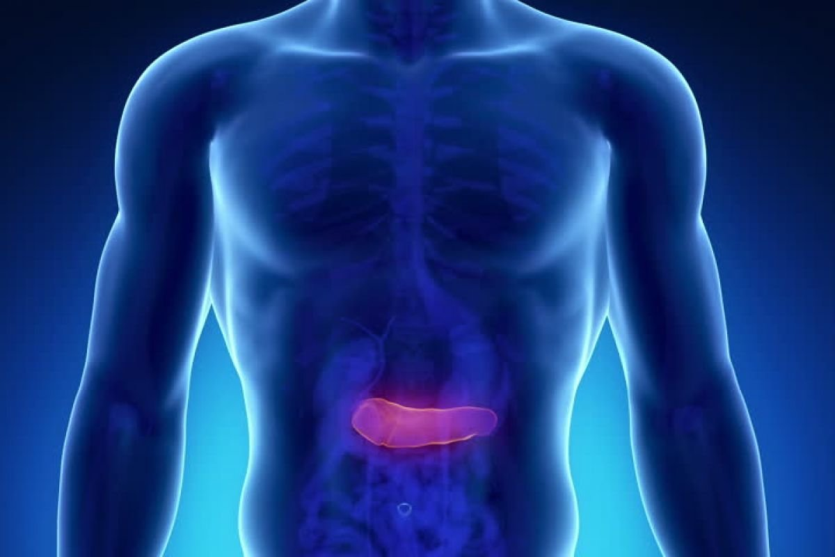Do Pancreatic Cysts Become Cancerous
