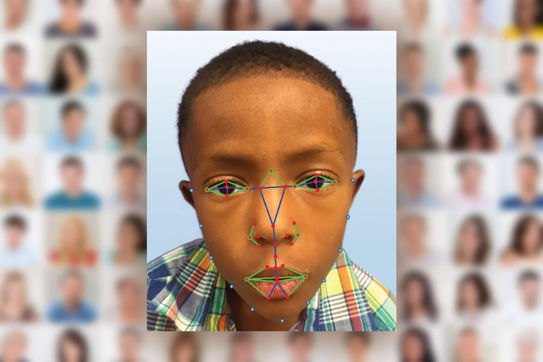 Facial recognition software help diagnose rare genetic disease a young boy undergoes facial recognition software for a possible diagnosis with digeorge syndrome a rare disease credit paul kruszka et al publicscrutiny Choice Image