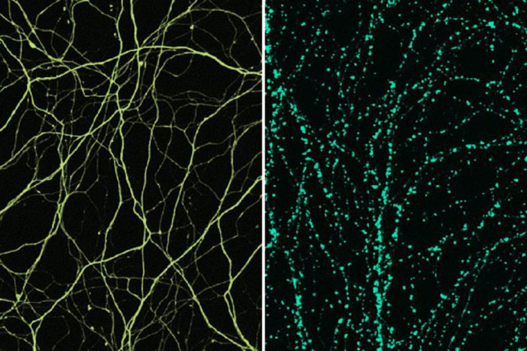 Findings suggest ways to block nerve cell damage in ...