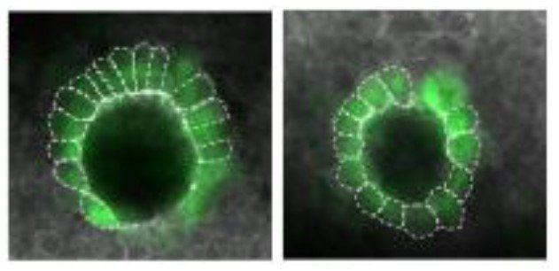 Genetic instructions from mom set the pattern for embryonic development