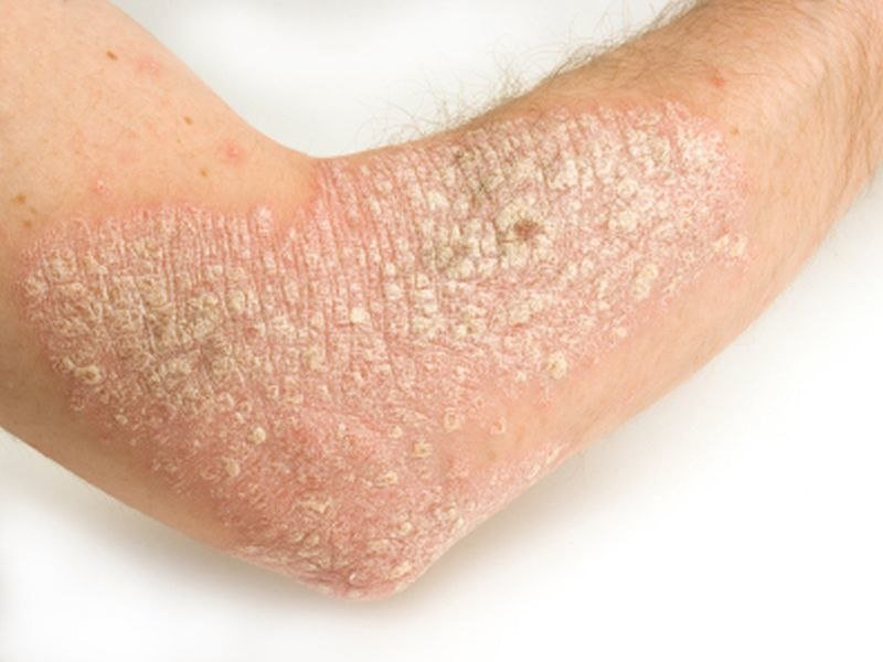 Herpes Zoster Risk Not Up In Systemically Treated Psoriasis